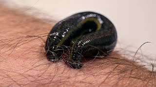 EUROPESE OMROEP | BBC Earth Lab | How Leeches are used in modern surgery | Infested: Living With Parasites | Earth Lab | 1514889954 2018-01-02T10:45:54+00:00